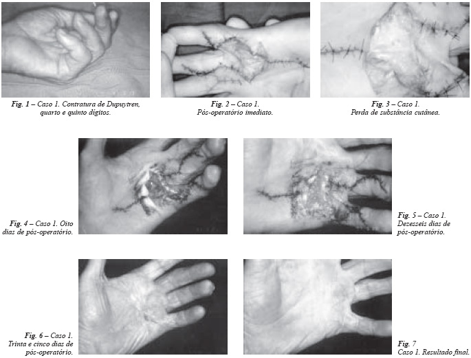 de ce durează articulația în palma mâinii