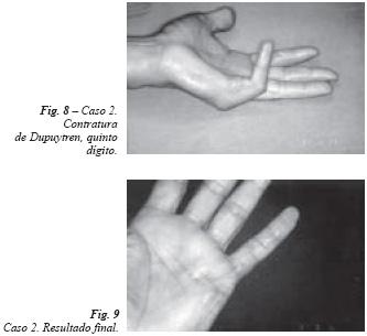 de ce durează articulația în palma mâinii)