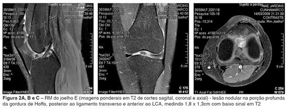 tratamentul magnetic articular